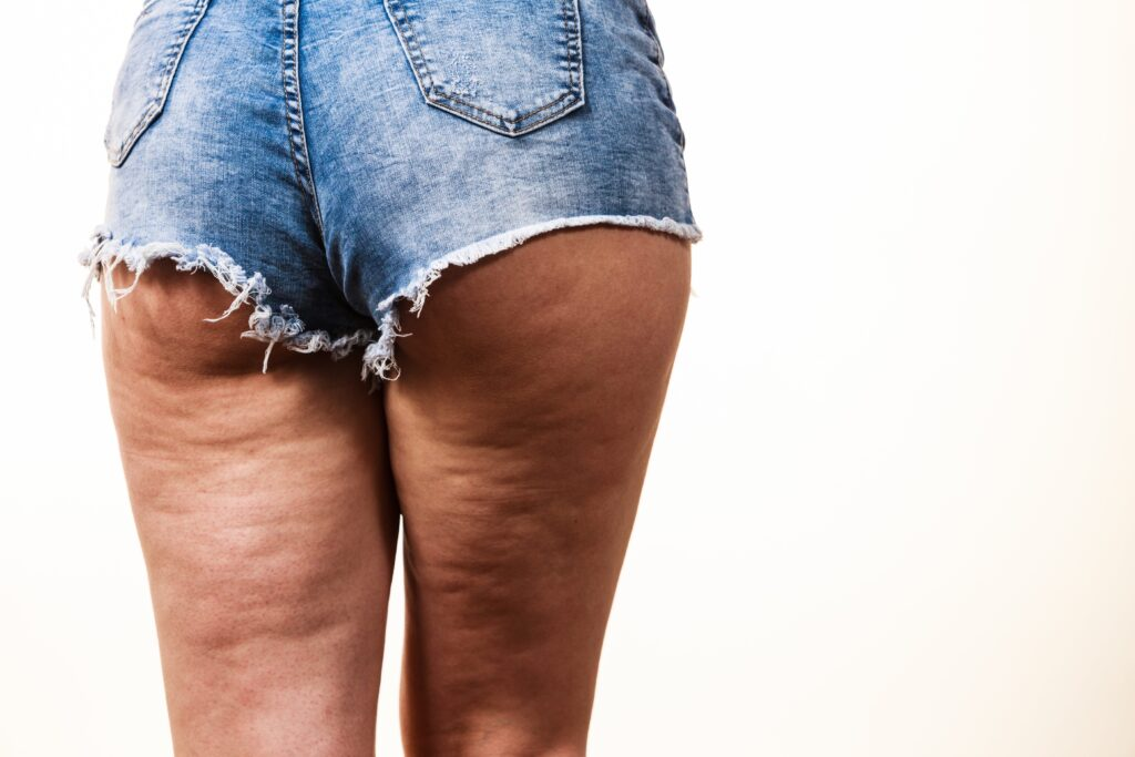 Fda Approves Qwo For The Treatment Of Cellulite